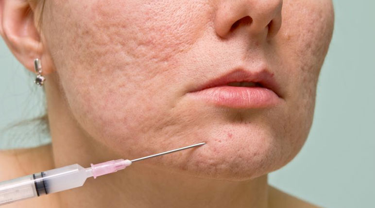 Acne Scar Removal in Oakville and Burlington